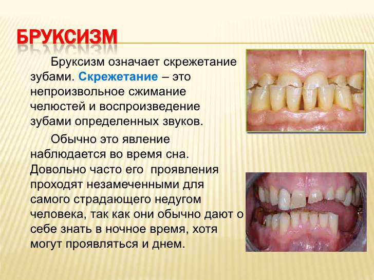 Почему хрустят зубы во сне