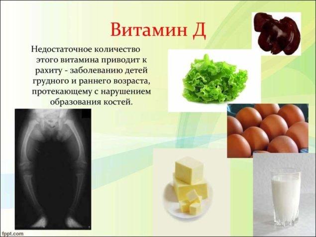 Дефицит витамина Д приводит к рахиту