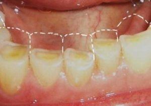 Последствия зубного скрежета