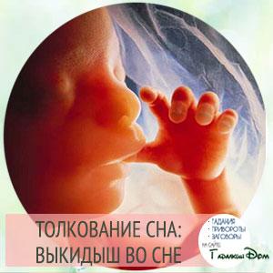 Выкидыш с кровью беременной