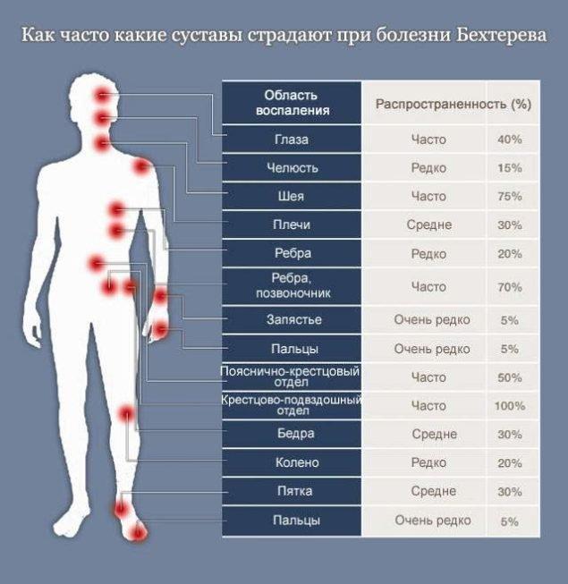 Суставы, страдающие от болезни Бехтерева
