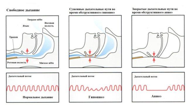 Типы апноэ