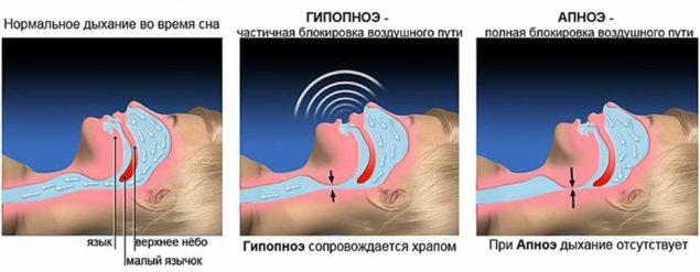 Апноэ и гипопноэ