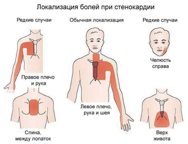 Одна из возможных областей локализации боли при стенокардии - спина между лопатками