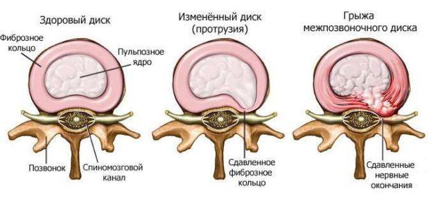 Процесс образования грыжи при остеохондрозе