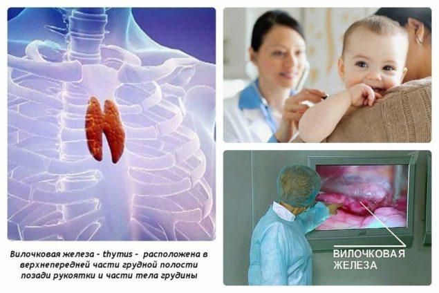 Увеличение тимуса у грудных детей