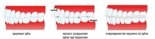 Процесс разрушения зубов при бруксизме