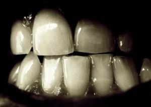 Причины зубовного скрежета