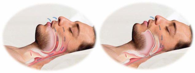 Синдром апноэ сна