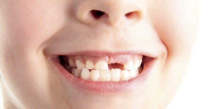 Сонник зубную боль ощущать. к чему снится зубную боль ощущать видеть во сне - сонник дома солнца