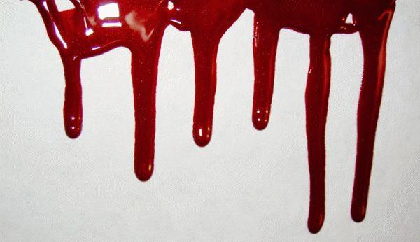 Беременной снится кровь выкидыш