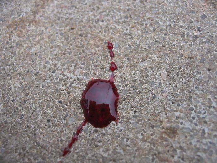 Сонник беременной приснился выкидыш и кровь. к чему снится беременной приснился выкидыш и кровь видеть во сне - сонник дома солнца