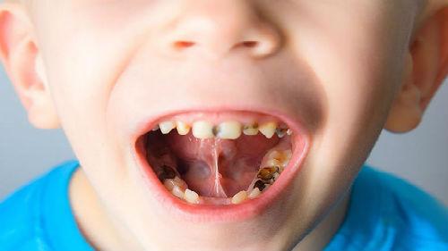 Сонник у ребенка болит зуб. к чему снится у ребенка болит зуб видеть во сне - сонник дома солнца