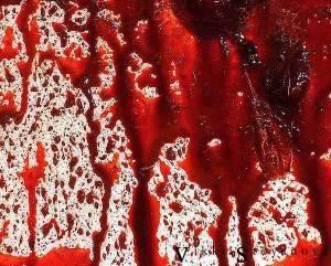 Выкидыш с кровью у другого человека